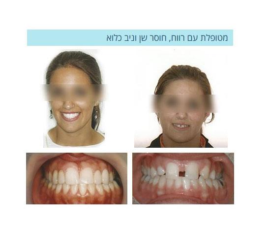 יישור שיניים ברחובות